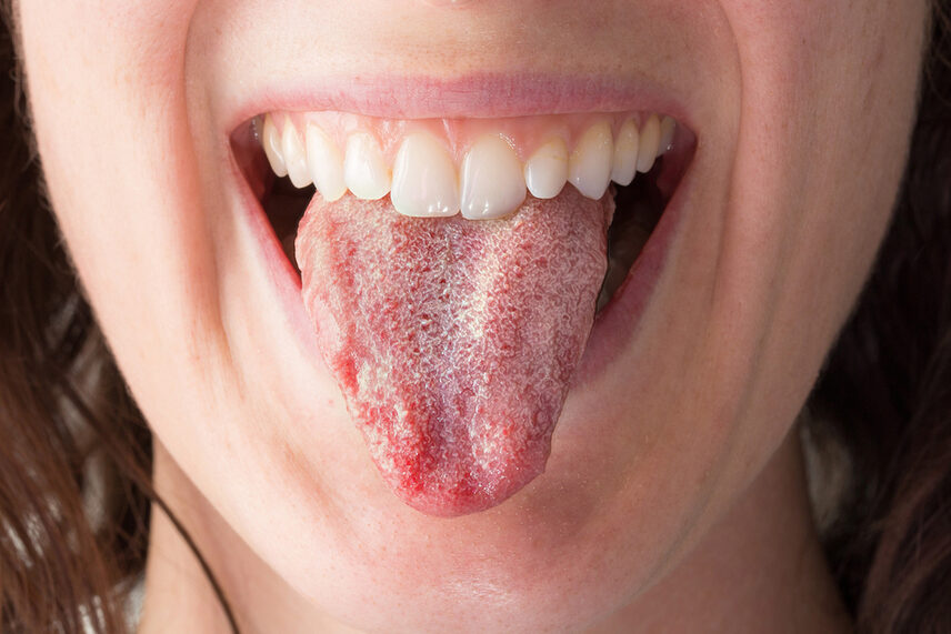 Candida albicans on Tongue Photo