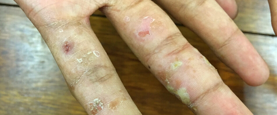 Man with Scabies on Hand
