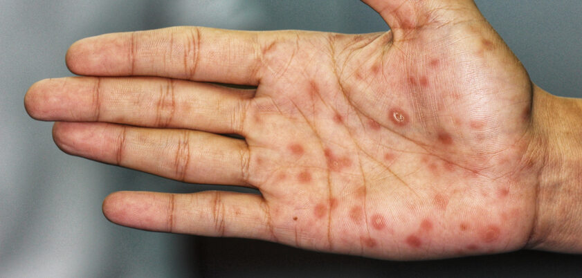Syphilis lesions on Man's Hand