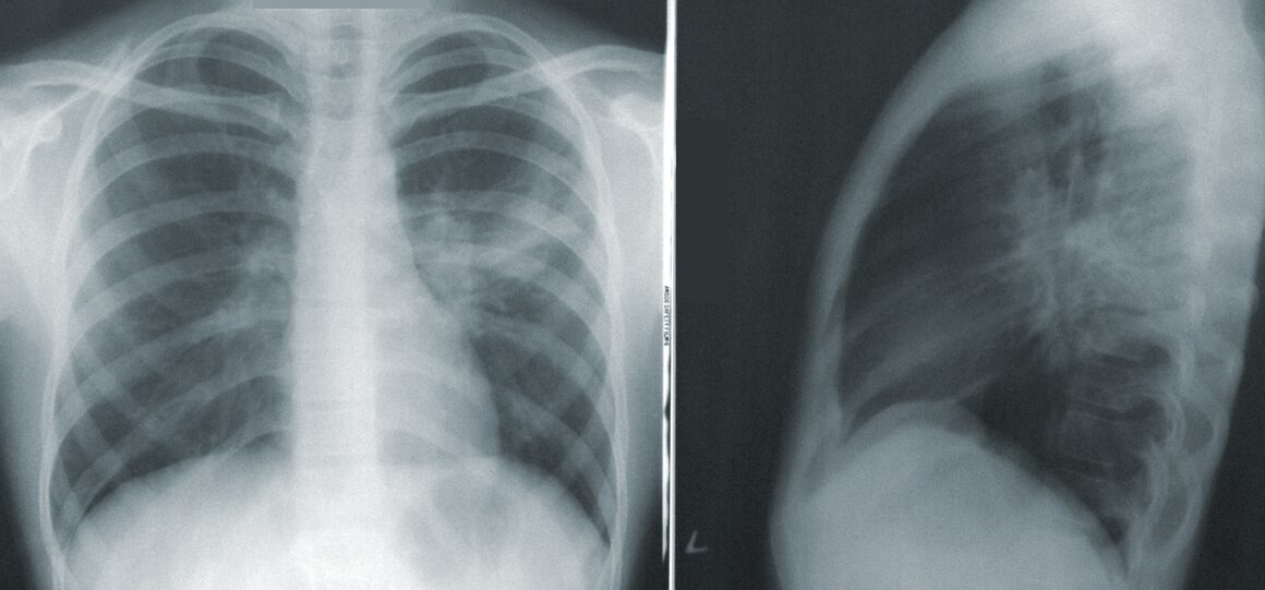 X-ray of Chest and Lungs